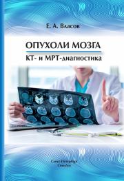 Опухоли мозга. КТ- и МРТ- диагностика