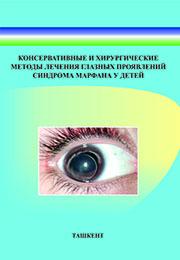 Консервативные и хирургические методы лечения глазных проявлений синдрома марфана у детей
